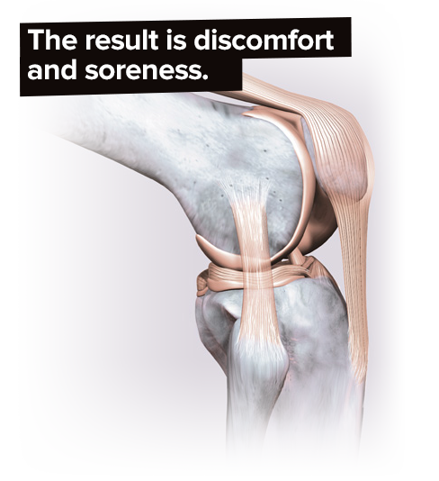 knee joint graphic