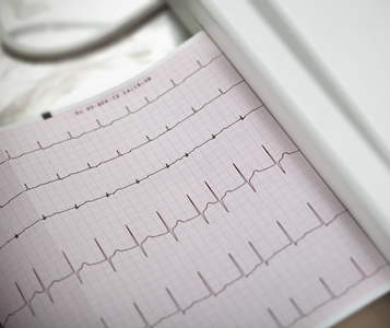 What You Need to Know About Causes & Treatment for Atrial Fibrillation