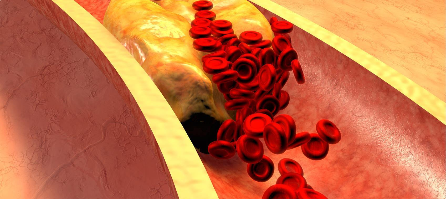 Natural Atherosclerosis Solutions | Dr  Williams